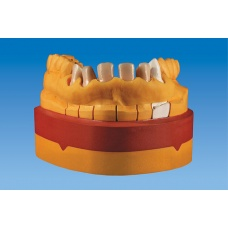 Geltonos spalvos dantenų imitacija Mejesthetic-Gingicolor